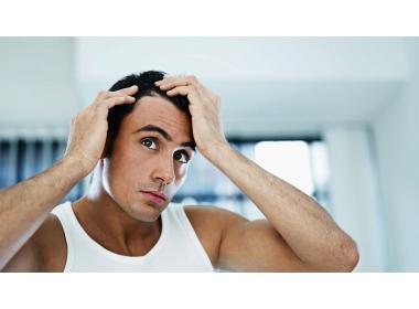 Alopecia: Cos'è, quali sono i fattori che la causano? Scopriamoli
