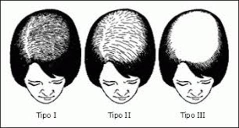alopecia-androgenetica-femminile